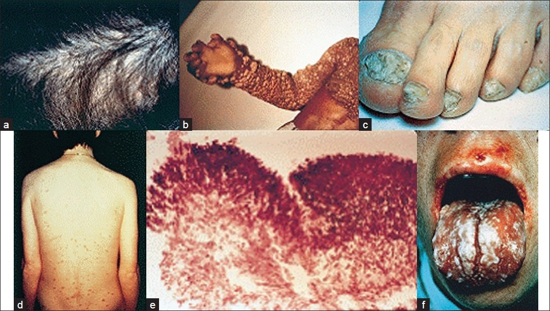 Figure 1 :Clinical presentations of some frequently observed fungal infections: (a) Tinea capitis due to Trichophyton tonsurans; (b) onychomycosis due to Trichophyton rubrum; (c) chronic oral candidiasis; (d) chromoblastomycosis; (e) histopathological appearance of an aspergilloma. (f) Cutaneous lesions in a patient with disseminate candidiasis.[8] (Reproduced with permission from Richardson et al.)[29