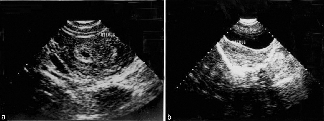 Figure 1: Diagnosis-Normal early pregnancy. (a) (TVS)-Shows a single Intrauterine gestation sac. (b) (TAS)-Does not show any intrauterine gestation sac