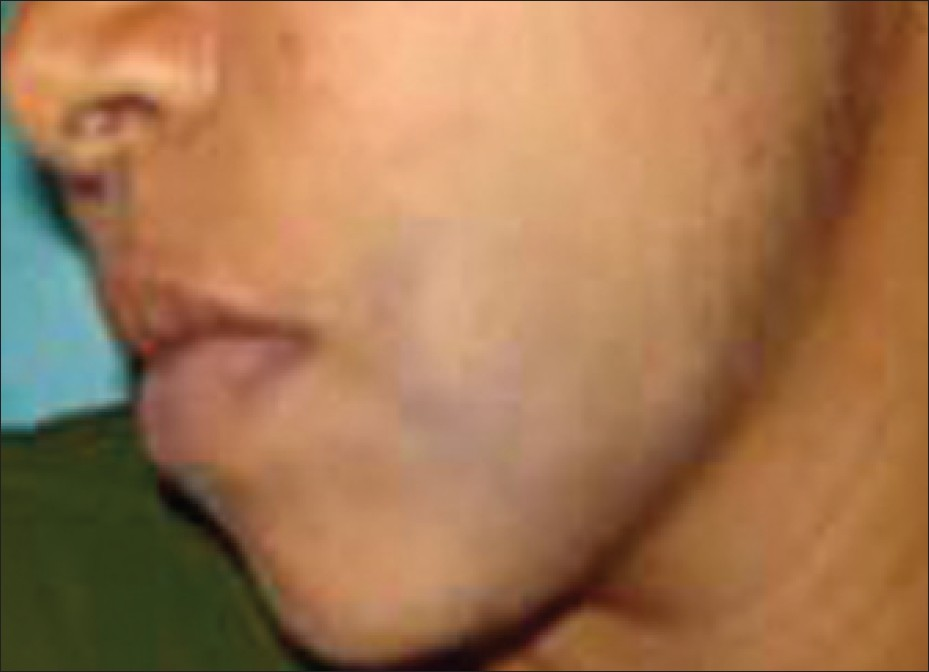 Swollen Submandibular Glands Images - Reverse Search