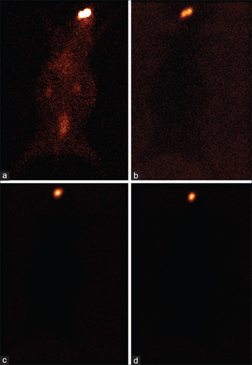 Figure 1: Static images of rabbit after 6 h of administering sparfloxacin formulations (a) marketed, (b) <i>in situ</i> gel, (c) nanosuspension, and (d) nanoparticles laden <i>in situ</i> gel