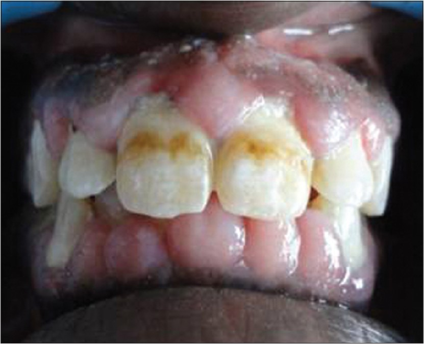 Figure 1: Gingival enlargement involving the labial surfaces of upper and lower anterior teeth