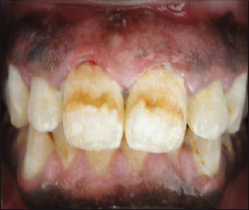 Figure 5: After drug substitution and oral prophylaxis with reduction in gingival enlargement