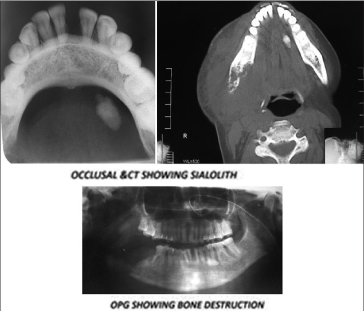 Figure 1: First case