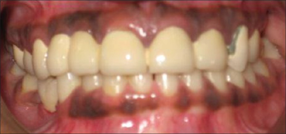 Multidisciplinary approach of ectodermal dysplasia with