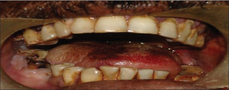 Figure 2: Intra oral photograph showing disturbed occlusion