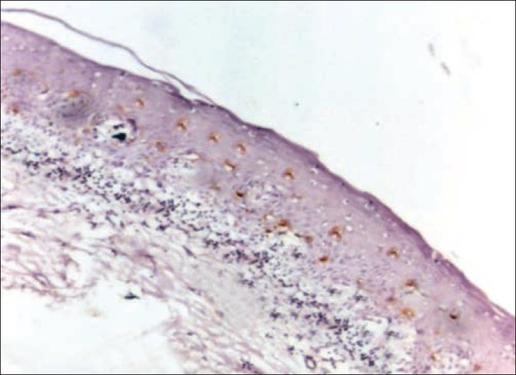 Figure 1: Photomicrograph of CD1a expression in lichen planus (×10)
