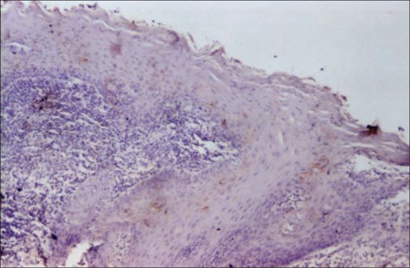 Figure 2: Photomicrograph of CD1a expression in lichenoid mucositis (×10)