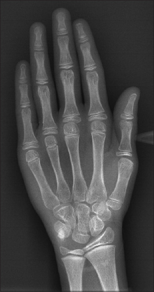 Figure 5: Digital hand-wrist radiograph of a male subject with chronological age of 12.67 years matched with the