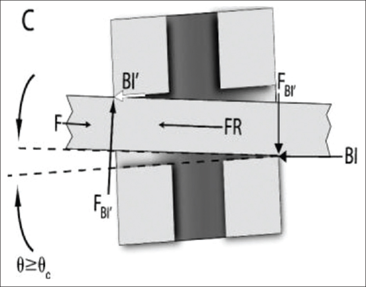 Figure 2: Binding of archwire with bracket wings
