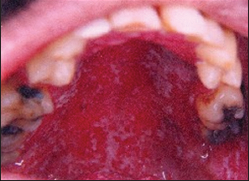 Figure 1: Multiple raised white patches with areas of erythema seen on the palate