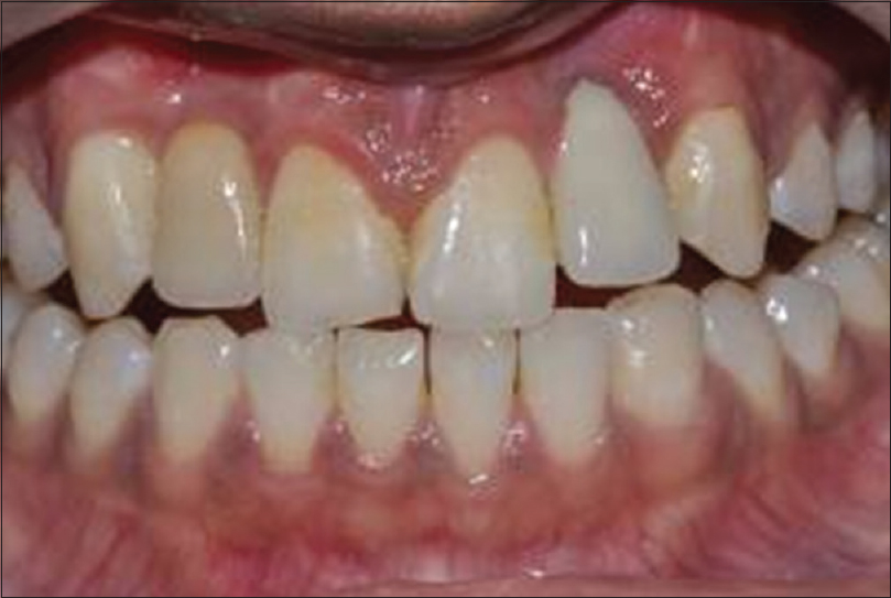 Figure 8: Final esthetic result after 2 years