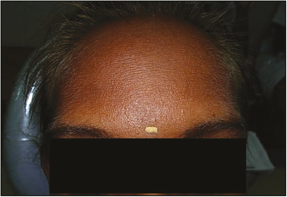 Figure 1: Photograph showing sparse, thin, light, blond hair over the scalp, scanty eyebrows, and eyelashes