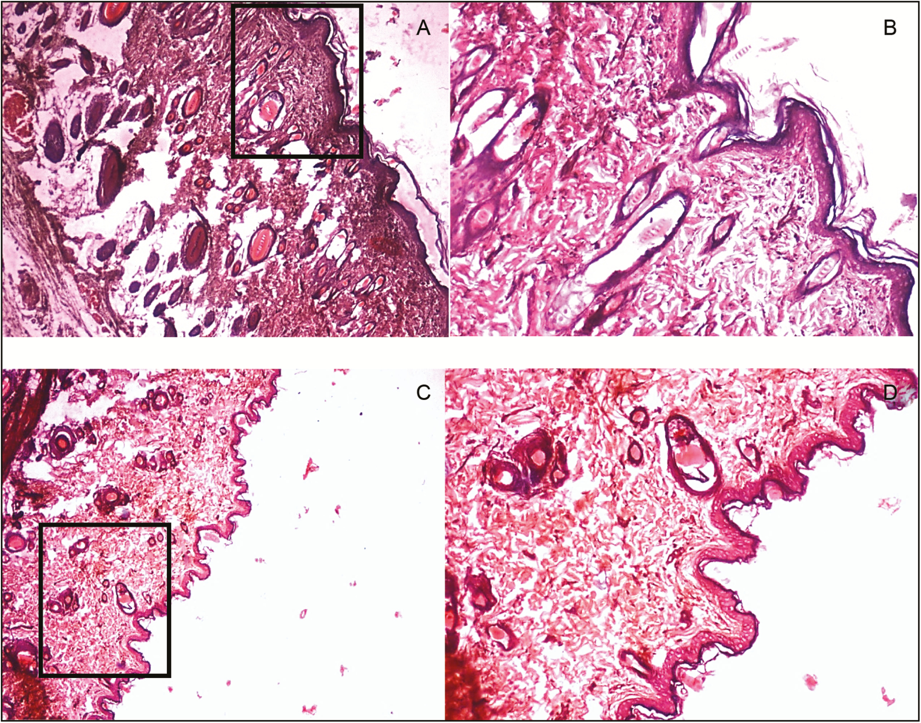 Figure 4: Histopathological slides for the manuka honey in diabetic and nondiabetic group. Figure (A) and (B) represents wound tissue specimen (wound bed) after complete healing of excision wound, stained with hematoxylin and eosin in the diabetic group (group V: manuka honey) as viewed under light microscope 4× and 10×. The sections showed well-formed keratinized squamous epithelium. The underlying dermis showed pilosebaceous units and small patches of loosely arranged collagen fibers, and rest of the area of the dermis showed normal collagen tissue. Figure (C) and (D) represents wound tissue specimen of nondiabetic group (group II: manuka honey) as viewed under light microscope 4× and 10×; the sections revealed keratinized squamous epithelium and the underlying dermis showed area of loosely arranged collagen fibers surrounding hair follicles