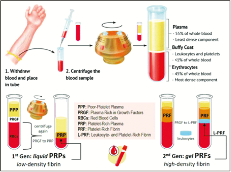 Figure 3: Platelet concentrates (Courtesy: researchgate.net)