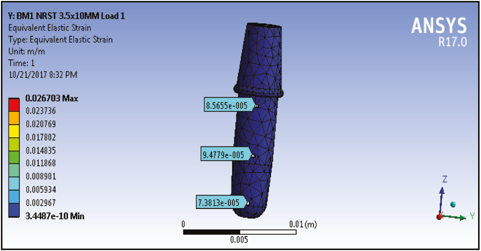 Comparative evaluation of implant designs: Influence of
