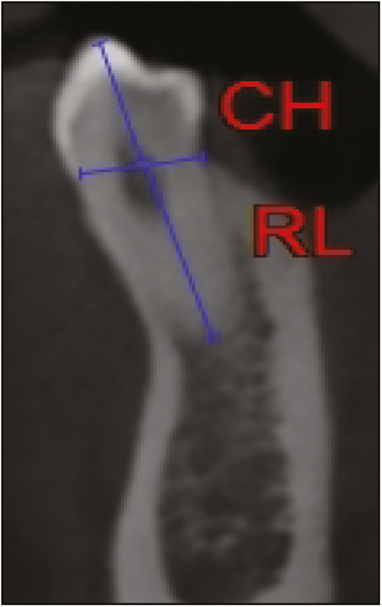 Figure 5: Measurements (CH, canine height; RL, root length)