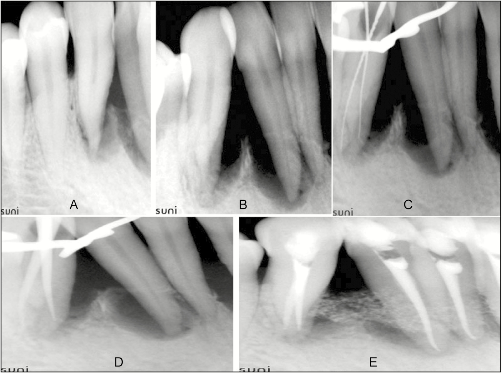 Figure 2: (A) Intraoral periapical radiograph of 27. (B) Angulated radiograph of 27. (C) Working length radiograph of 27. (D) Radiograph showing master cones in 27. (E) Radiograph after 6 months