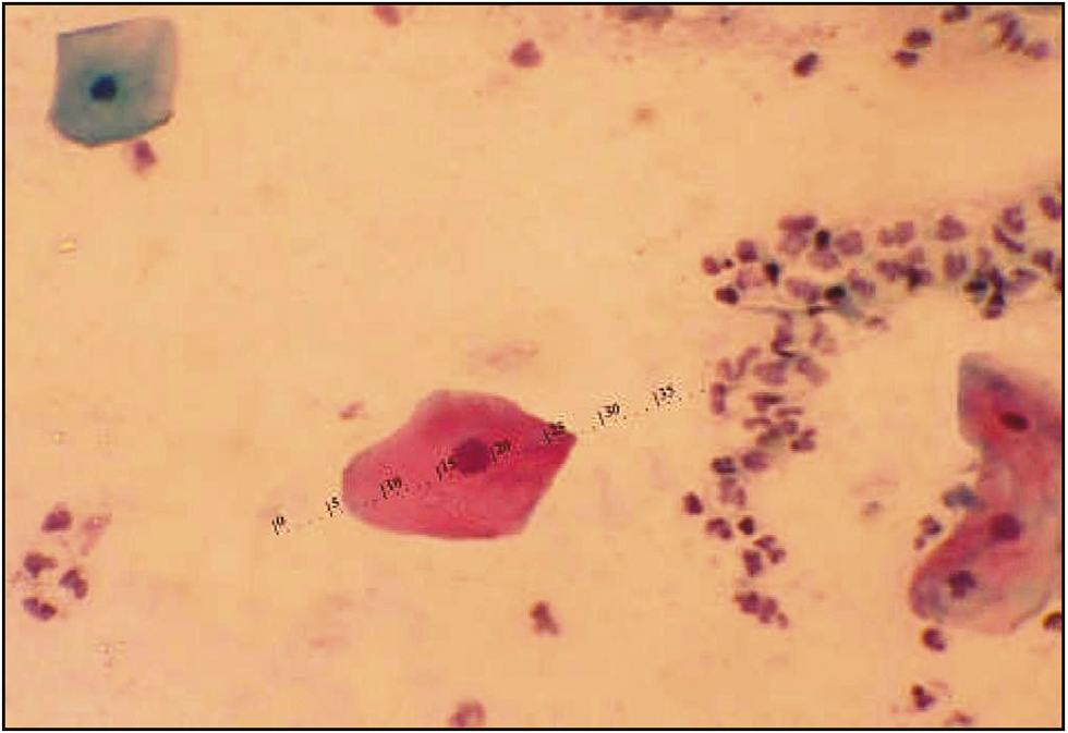 Figure 3: Photomicrograph showing exfoliated cells of diabetic patients