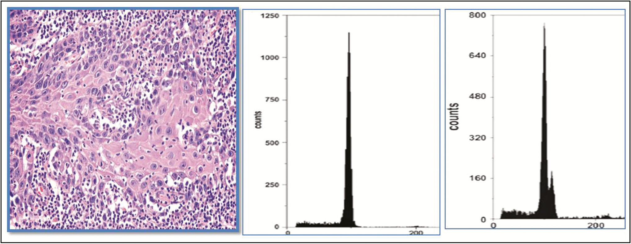 Figure 4: Moderately differentiated epithelium of oral squamous cell carcinoma and diploidy and aneuploidy demonstrated by peaks